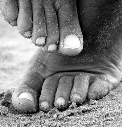 Micosi alle unghie: cause e rimedi