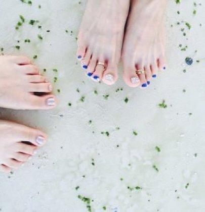 Curare i geloni: semplici rimedi casalinghi