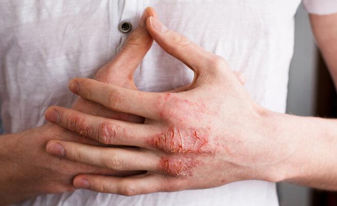 eczema alle mani sintomi