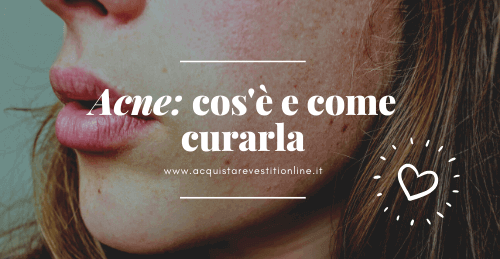 acne cos'è e come curarla